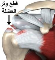 التهابات العضلات المدورة للكتف